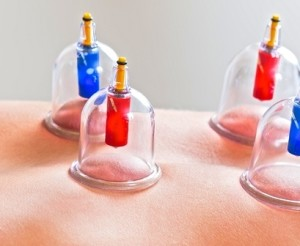 cupping of vacussage