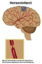 Wat is een herseninfarct