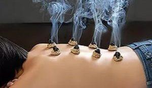 massage met moxa,